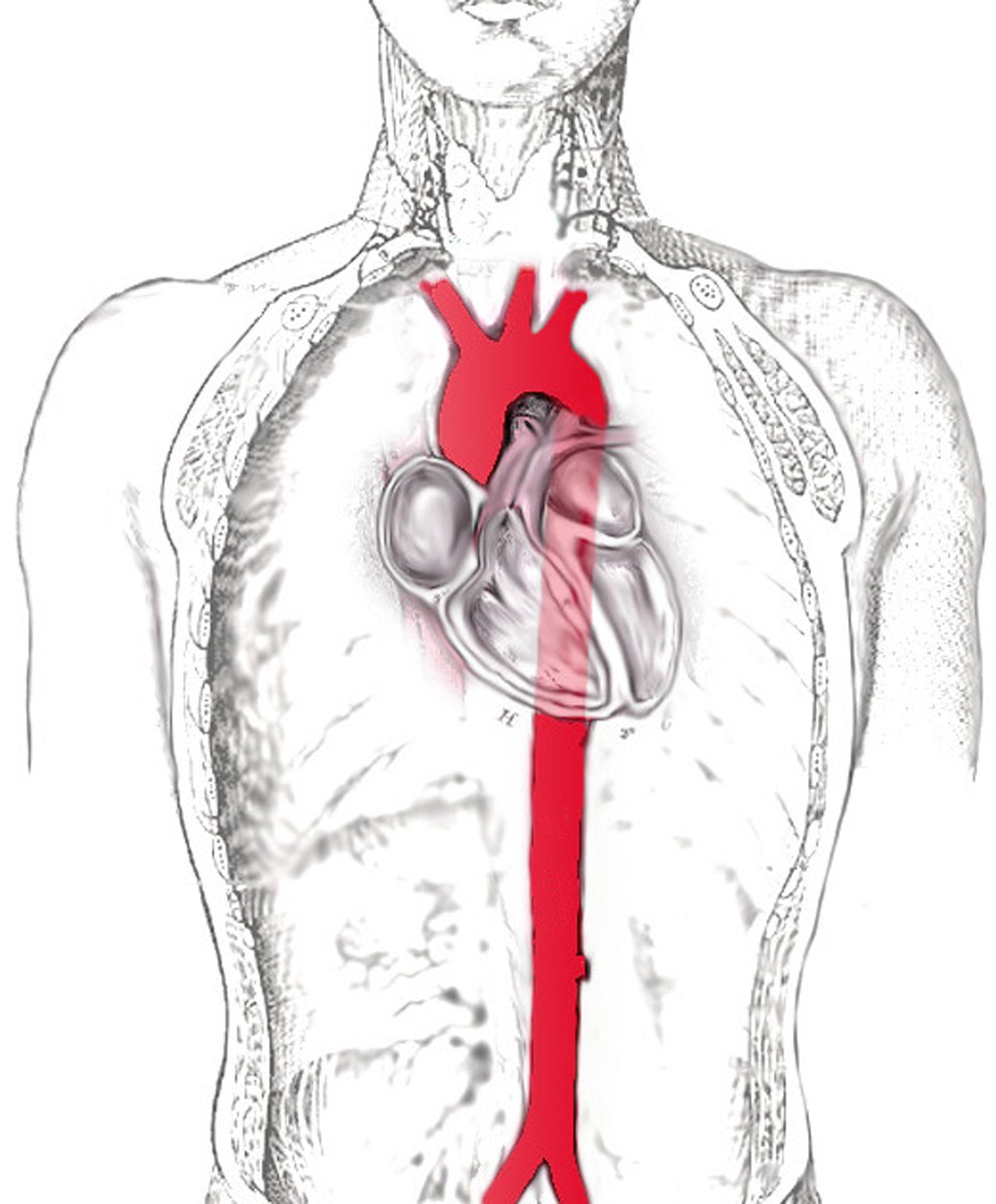 Großartig Funktion Der Aorta Ideen - Menschliche Anatomie Bilder ...