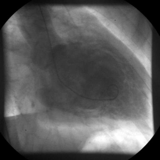 abhören der lungen mit stethoskop am rücken