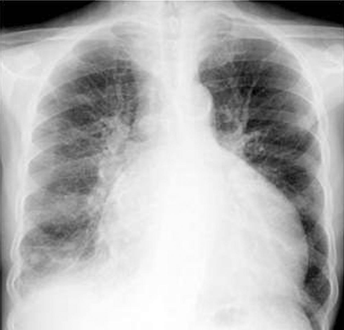 hypertrophe nicht obstruktive kardiomyopathie