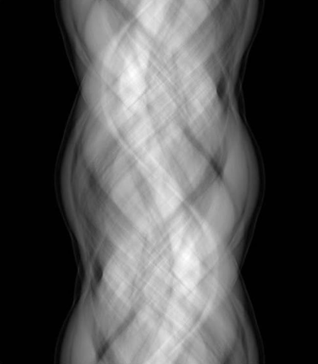 starke scmerzen im arm nach dem herzkatheter