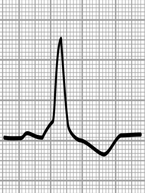 ... Herzschwache Ekg Koronare Herzkrankheit Khk Symptome Therapie ...