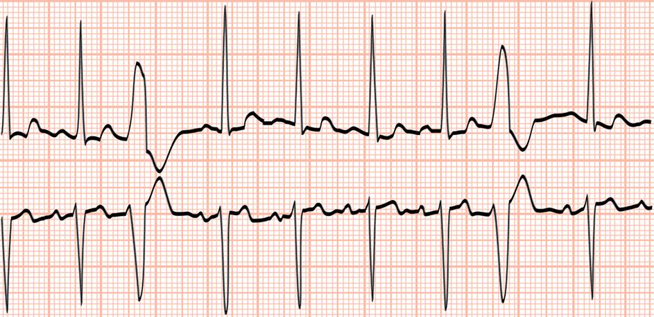 Herzrhythmusstörungen: Sowohl Durch Die Eben Beschriebene Kaliumansammlung  Im Blut Als Auch Durch Die Vergrößerung Der Herzkammern Können ...