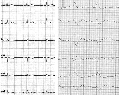 Abb. Links: Normales EKG Und Schenkelblock. Beachten Sie Im Linken Bild Den  Schlanken QRS Komplex (u003d Elektrische Aktion Der Hauptkammern) Und Im  Rechten ...
